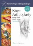 Master Techniques in Orthopaedic Surgery: Knee Arthroplasty